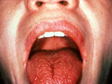 Willsjogrens syndrome cause muscle pain?
