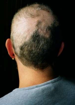 Is pulling out your own hair considered self injury?