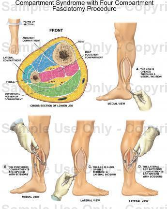 I am having surgery on my leg for compartment syndrome . How long is the surgery? I'm having surgery on the deep posterior and anterior compartments.