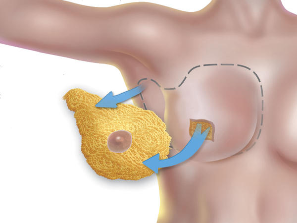 How is a mastectomy performed?