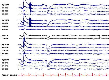 Can we use EEG and/or qeeg for infants to map which part of the body an infant is experiencing pain?
