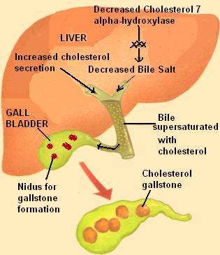 Can you still have gallstones without your gallbladder?