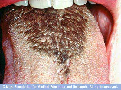 What are some causes of light blue hairy tongue?