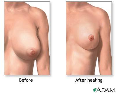 Does toning up your chest help sagging breasts?