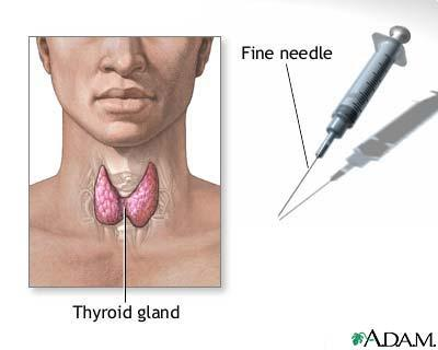 Decrease in thyroid gland size and increase in thyroid nodule size?