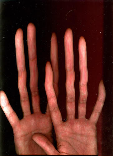 What are long fingers caused by?