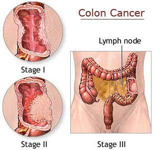 What are my chances of recovery from colorectal cancer?