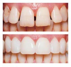 What can veneers treat?
