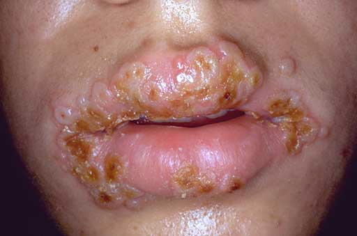What can I do to never have another outbreak of herpes?