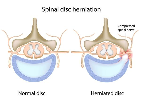 Can a lumbar disc herniation cause tingling in the back and neck?
