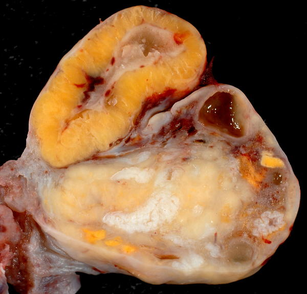 Ovarian cyst dermoid or serous cystadenoma can be tested with small part for complete pathologic analysis?