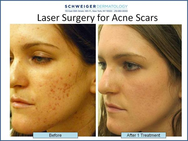I don't have money for plastic surgery for my really bad acne scars. What else do I have left to do?