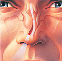 Ones side of nostril is swollen! it been going on for about 1 yr now! it doesn't hurt or anything. I feel like blood is rushing in my nose. ?