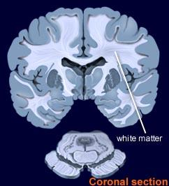 What is white matter in the brain?