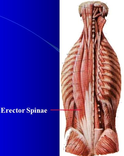 How to heal a pulled erector spinae? How long should it take?
