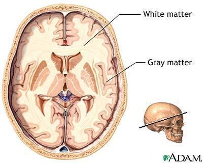 What is white matter of the brain and what is grey matter?