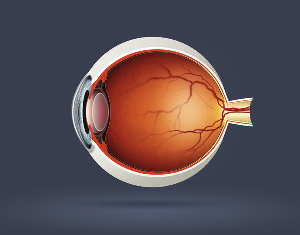 How long does vision changes associated with congenital cataract last?