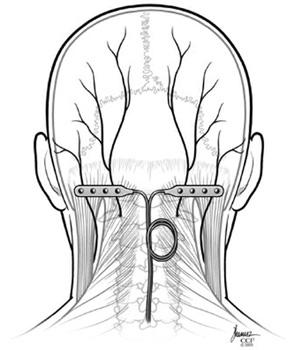 I have had a nerve stimulator implanted for occipital peripharil neropathy. It was said a damaged hypothalmus caused all this. Is this true?