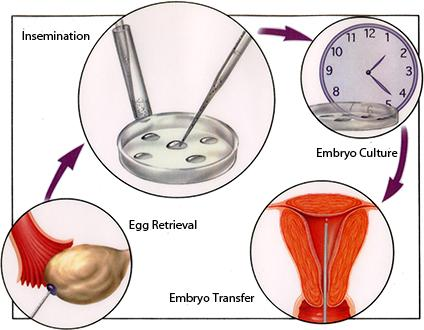 "How does IVF ""egg donor"" process work?"