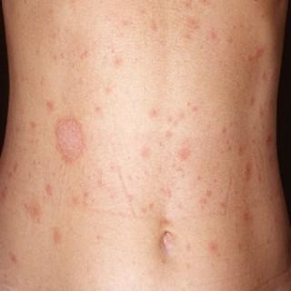 Can pityriasis rosea be spread from person to person? What is the incubation period?