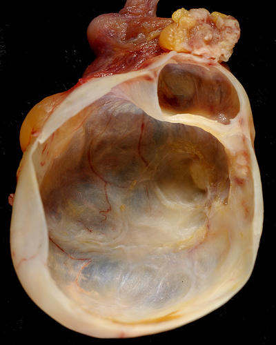 Does serous cystadenoma have both solid and cystic components?