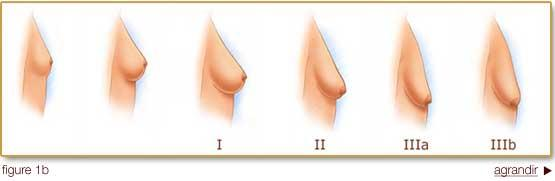 Shoulders down 600cc breast augmentation before after more