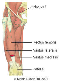 I am awaiting surgery for anterior cruciate ligament tear. Are there any exercises that I coulddo?