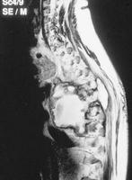 If detected at an early stage, can koch's spine with psoas abscess be cured only with medication (without surgery)?
