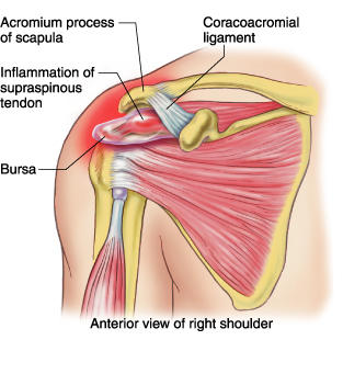 I have tendonitis in my shoulders, how can I make it better?