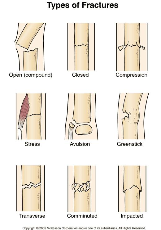 How to tell the difference between a complete fracture, hairline fracture, green stick fracture?