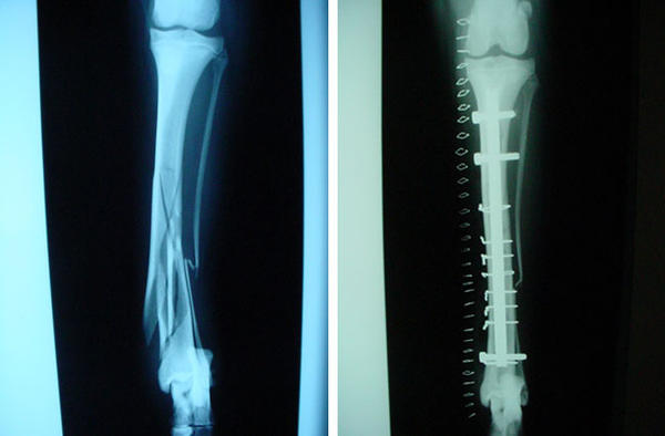 What is the post-surgery treatment for a compound fracture of the tibia?