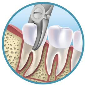 Should regular molar extractions cost the same as wisdom tooth extractions?