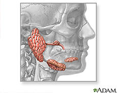What can cause one salivary gland is higher than the other?
