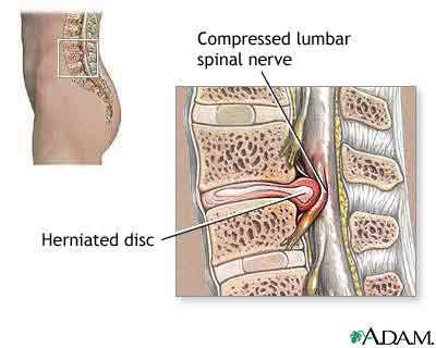 I've been hurting in my lower back an the to of my left leg goes numb what could be causing it?