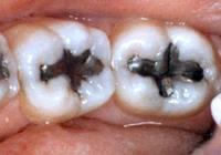 What color are amalgam fillings?