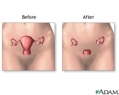 How can I get my hormones back to normal after a hysterectomy?