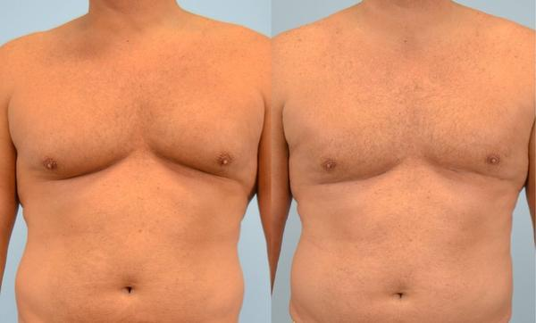 Please give advice on how to get rid of men breast?