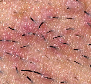 How do I prevent ingrown hairs from causing me pain?