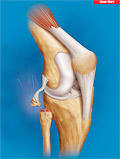 What symptoms would one expect to see with an avulsion fracture of the fibular head?