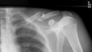 What is done for a collar bone fracture?