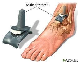 What to expect from ankle replacement surgery?