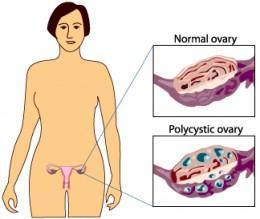 I haven't been ovulating for the past 6 months. What can I do to ovulate? By the way im iregular on my period.