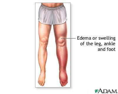 My left ankle has pitting edema, when i bend over it feels as if my head is feeling up with fluid and sometimes short of breath. ?