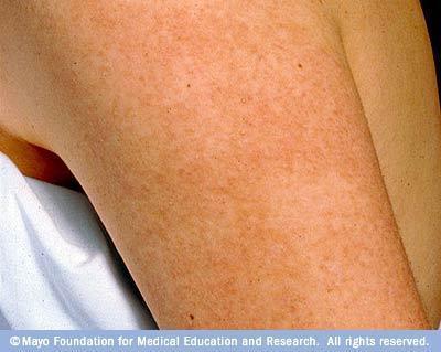 Keratosis pilaris -- how can I get rid of it?