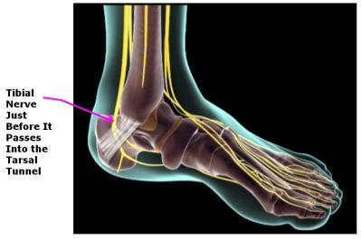 Numbness in sole & hot pain in feet. Neuroma?