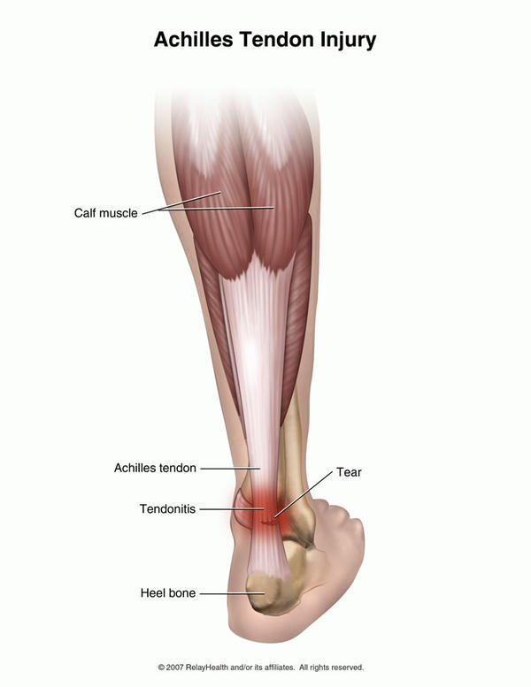 How long does it take for a tendon injury to heal?
