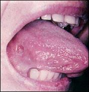 My tongue has white spot. Is it possible to get tongue cancer after one month of smoking?