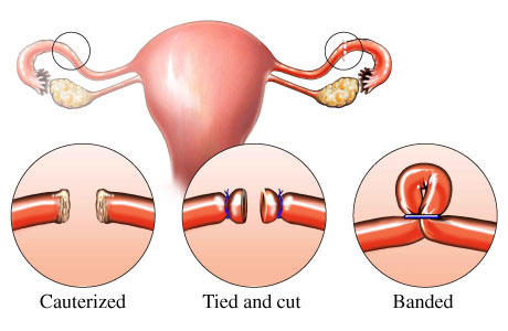 What is the probabilty of getting pregnant after having your tubes clamped 12 years ago?