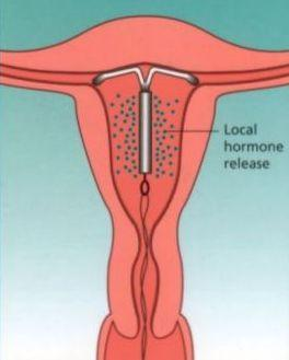 Does metronidazole (flagyl) decrease the effectiveness of mirena (levonorgestrel) iud?