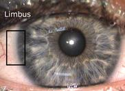 What causes a black circle around the iris of your eyes?